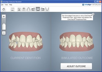 Digital impressions of current mouth beside what it can become after treatment
