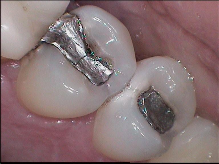 Two teeth silver fillings